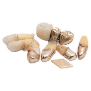 Zahn Gold