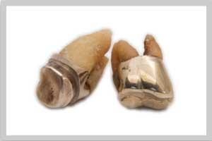 goldzahn-verkaufen-pasigo